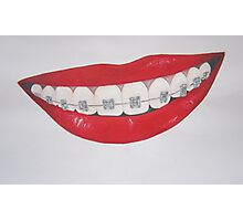 lips and retainers Photographic Print