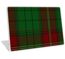 00185 Ulster District Tartan  Laptop Skin