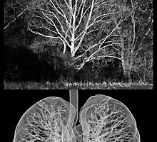 Earth's Lung by G. Patrick Colvin