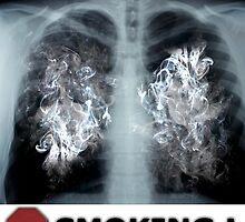Stop Smoking X-ray by jenterpixels