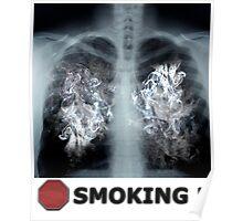Stop Smoking X-ray Poster