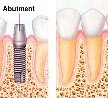 Best Dental Implant Specialist in India - Smile Delhi The Dental Clinic by ansh03