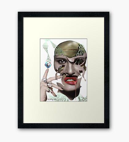 reconstructive surgery Framed Print