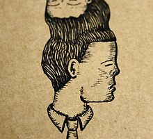 A Case Of Craniopagus Parasiticus by DavidBaddeley