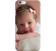 What a Lovely Smile iPhone Case/Skin