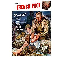 This Is Trench Foot -- Prevent It! Photographic Print
