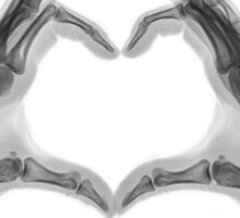 X-ray of hands forming a heart shape Sticker