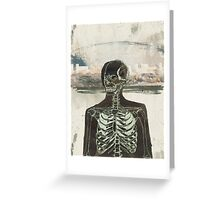 The Naked Stare  Greeting Card