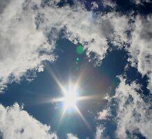Sun Surround by starlitewonder