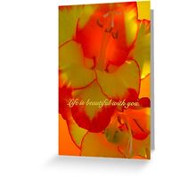 LIFE IS BEAUTIFUL WITH YOU. (CARD) Greeting Card