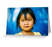 The eyes have it. Greeting Card