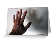 Let me give you    a hand!!  Greeting Card
