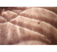 hairy scale skin Photographic Print