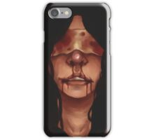 Of Insult and Injury iPhone Case/Skin