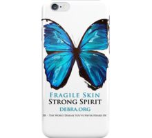 Beautiful Blue Butterfly Proceeds donated to DebRa.org iPhone Case/Skin