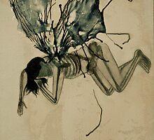 fairy x-ray (supine) by Fache Desrochers