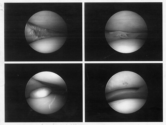 arthoscopic surgery photo of my knee by Anthony DiMichele