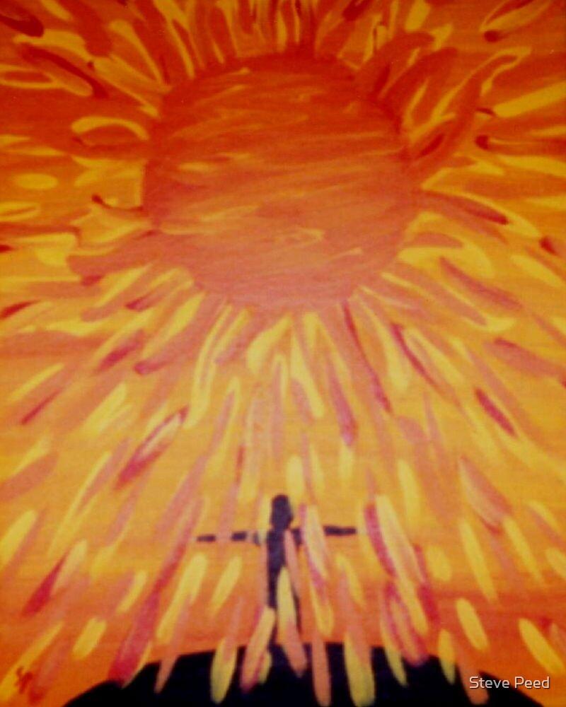 Sunburn by Steve Peed