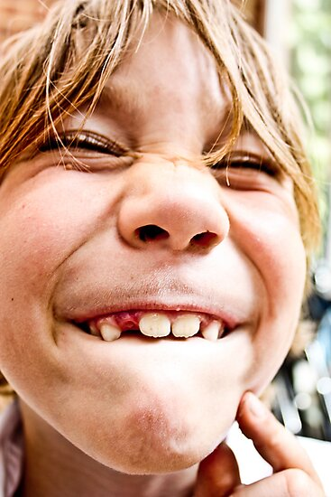 lost tooth by Daniel Weeks