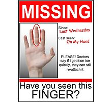 Missing Finger Photographic Print