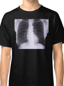 X-RAYS Classic T-Shirt