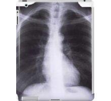 X-RAYS iPad Case/Skin
