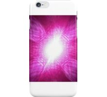 Laser. iPhone Case/Skin