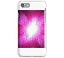 Laser. iPhone Case/Skin