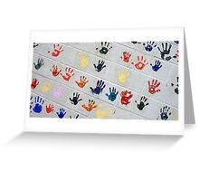 ...this is the hand you used to hold when i was only 5 years old... Greeting Card