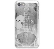 Kidney Transplant Donor iPhone Case/Skin