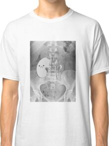 Kidney Transplant Donor Classic T-Shirt