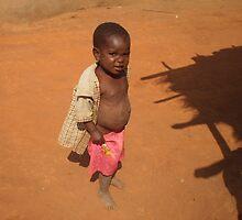 Patrick, Malawi by UnitedWithHope