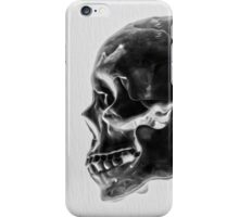 X-Ray Skull iPhone Case/Skin
