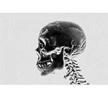 X-Ray Skull Photographic Print