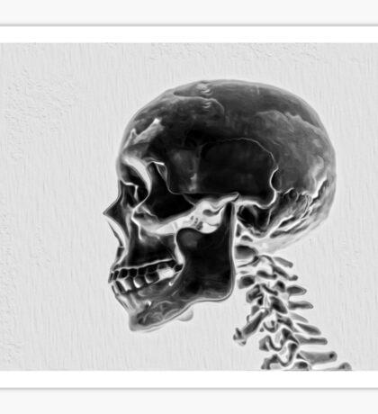 X-Ray Skull Sticker