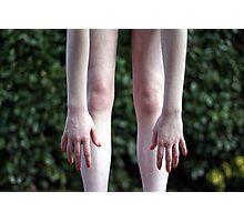 ragged limbs Photographic Print