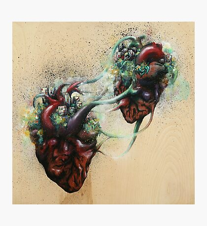 Arrested Vascular Fusion of Two Entities in Need Photographic Print