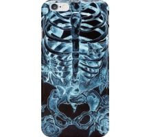 x-ray chest of butterflies iPhone Case/Skin