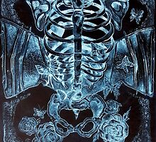 x-ray chest of butterflies by Samantha Lusher