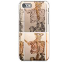 Skeleton Progression iPhone Case/Skin