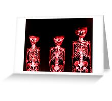 The Burning Dead Greeting Card