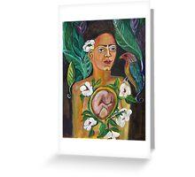 FRIDA's BABY by Ruth Olivar Millan Greeting Card