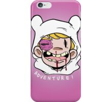 ADVENTURE OUCH iPhone Case/Skin
