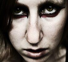 Bruising  by ShadowChocobo