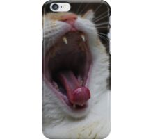 A Boring Day iPhone Case/Skin