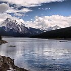 Medicine Lake by Vickie Emms