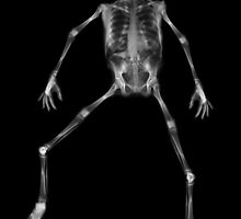 Ray - X-rays compiled to create Man by SturgeonPhoto