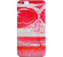 Trachea Cells under the Microscope iPhone Case/Skin