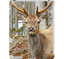 Check out my rack iPad Case/Skin