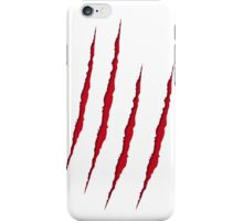 Scratch iPhone Case/Skin